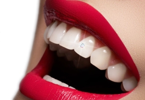 Dental hygiene and Cosmetic dentistry